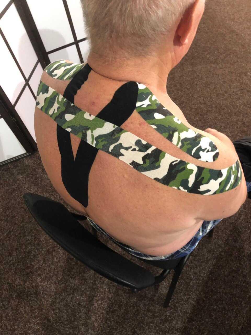 тейпирование мышц спины
