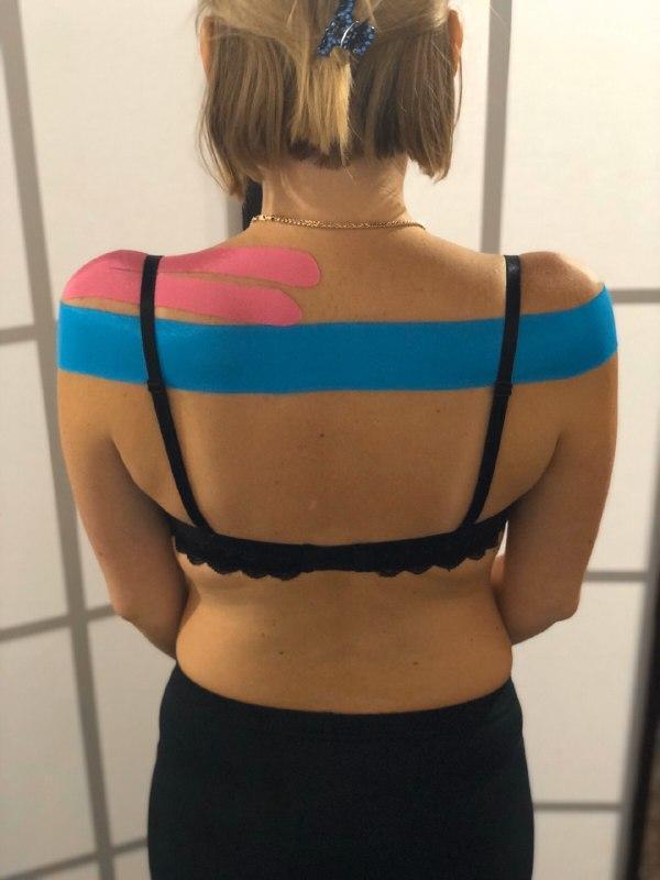 Аппликация: терапевтический тейп на надостную мышцу.