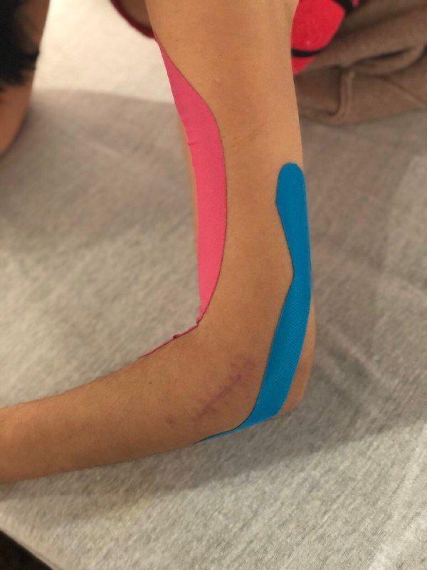 Аппликация тейпа при контрактуре локтевого сустава