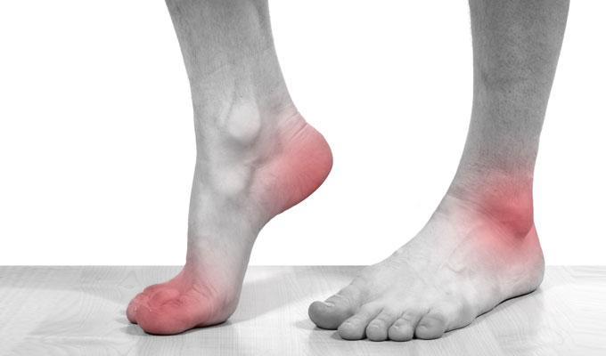 невропатия малоберцового нерва лечение вХерсоне
