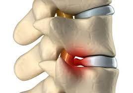 Лечение грыжи дисков без операций