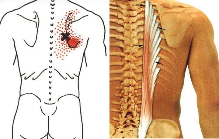 Узлы на мышцах лечение вХерсоне