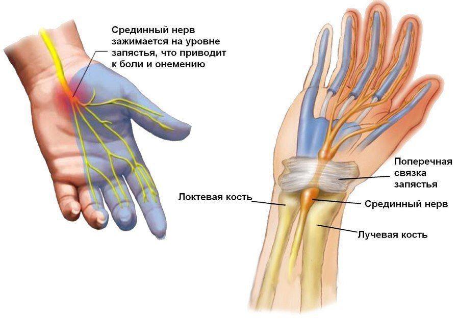 Синдром запястного каналаХерсон