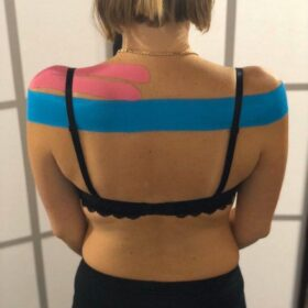 Аппликация: терапевтический тейп на надостную мышцу совместно с корректирующим тейпомфото