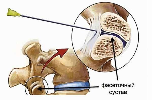 Фасеточный синдромХерсон