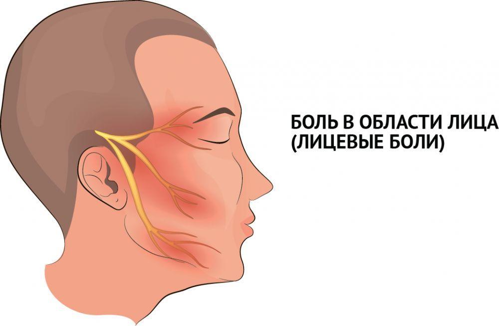 боли в области лица лечение вхерсоне
