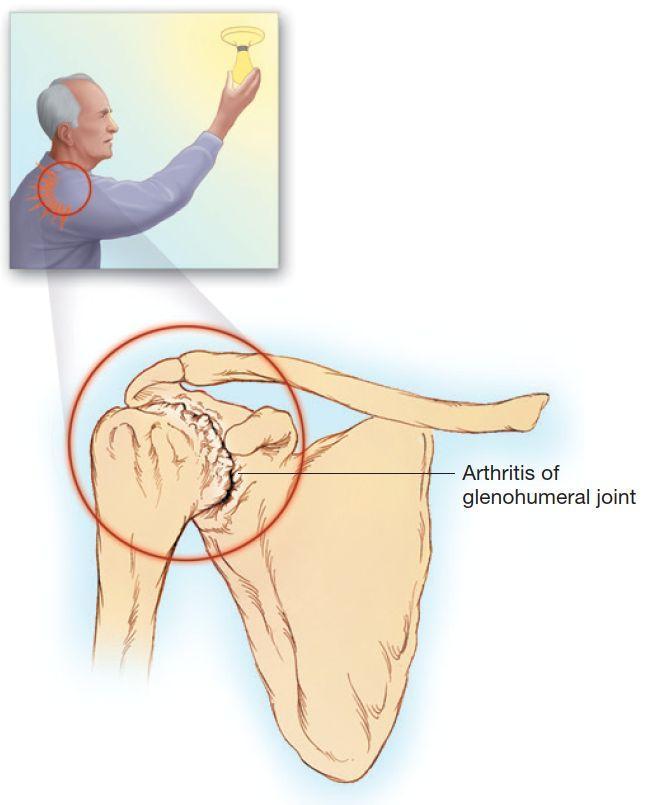 Артрит плечевого суставахерсон