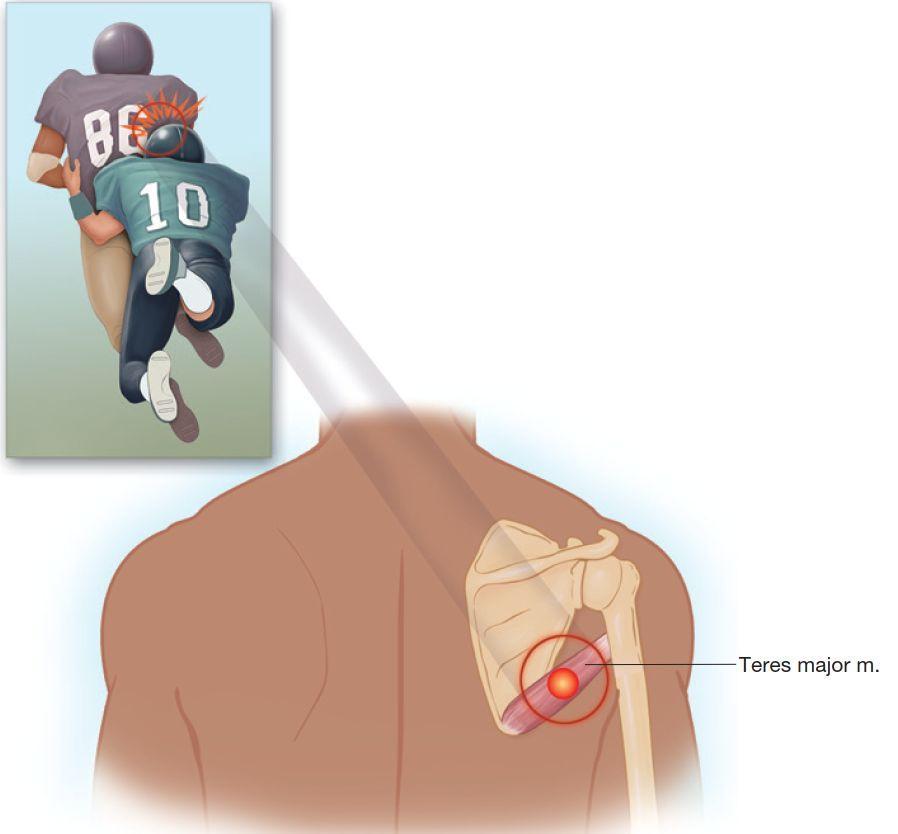 Лечение боли в плечехерсон