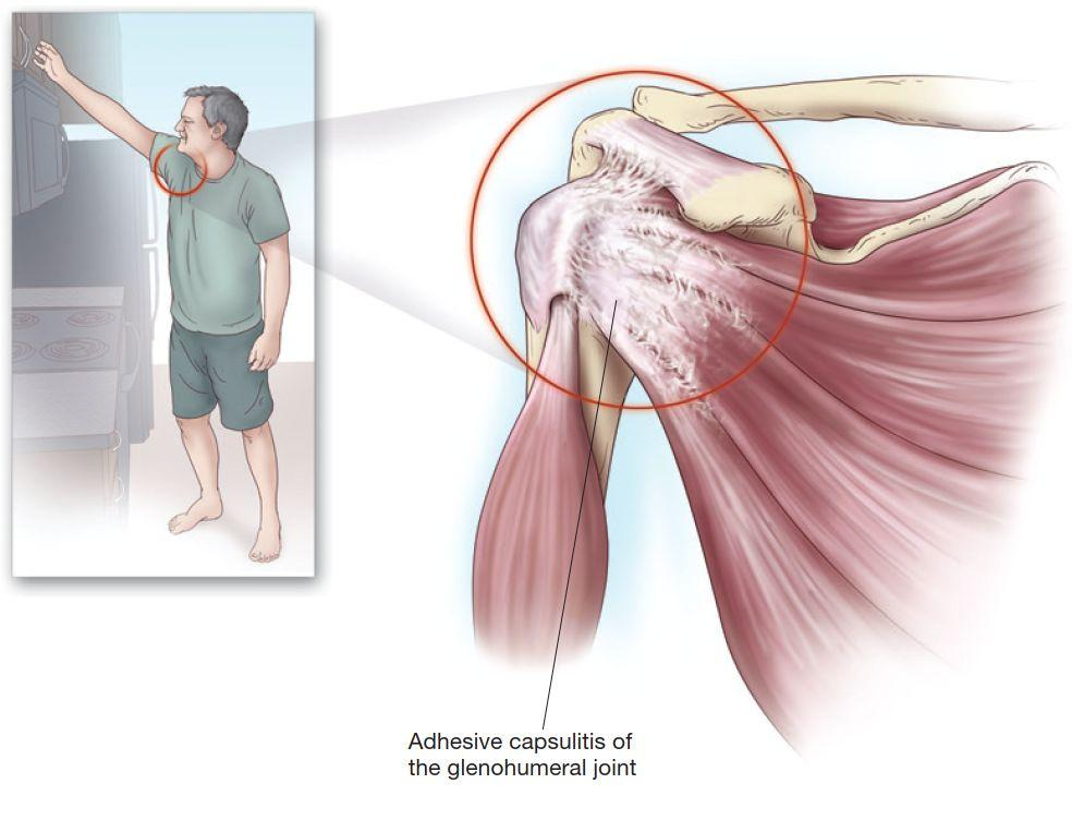 Лечение боли в плече