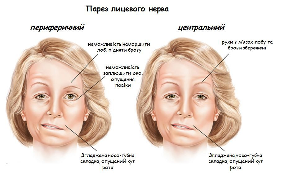 парез лицевого нерва херсон