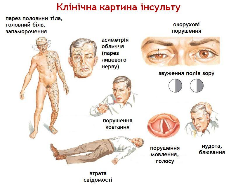 клиническая картина инсульта